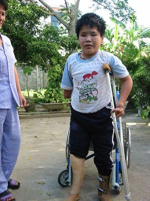 landmine survivor